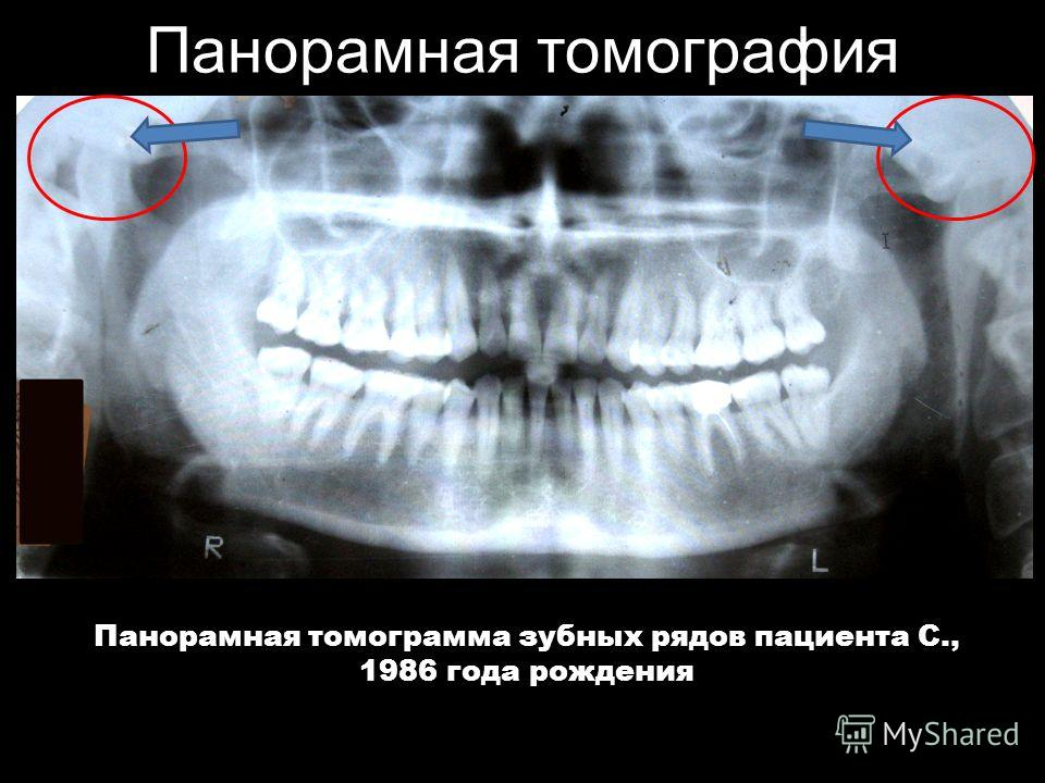 Панорамная томография Панорамная томограмма зубных рядов пациента С., 1986 года рождения