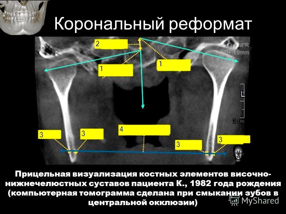 Корональный реформат Прицельная визуализация костных элементов височно- нижнечелюстных суставов пациента К., 1982 года рождения (компьютерная томограмма сделана при смыкании зубов в центральной окклюзии)