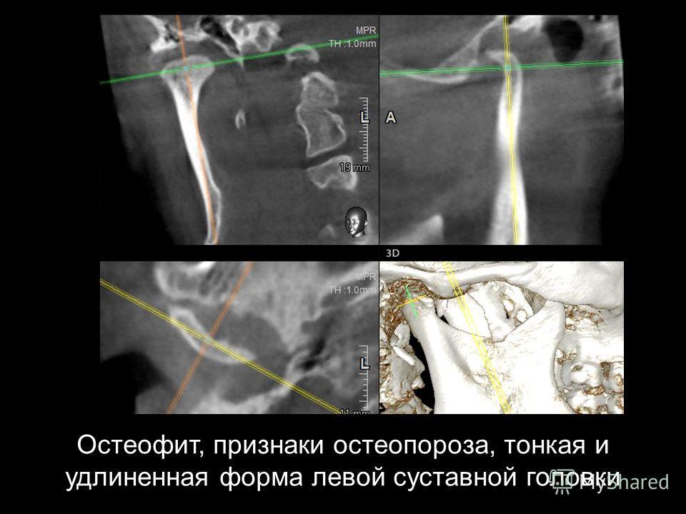 Остеофит, признаки остеопороза, тонкая и удлиненная форма левой суставной головки