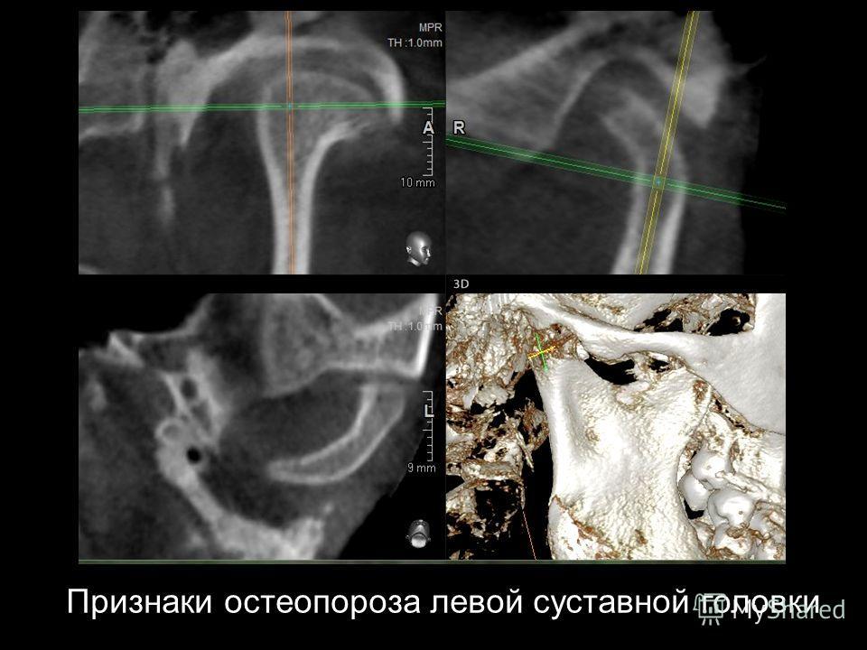 Признаки остеопороза левой суставной головки