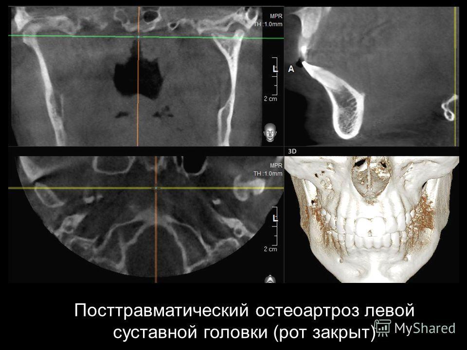 Посттравматический остеоартроз левой суставной головки (рот закрыт)