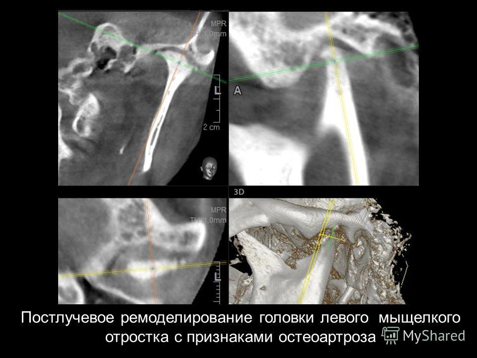 Постлучевое ремоделирование головки левого мыщелкого отростка с признаками остеоартроза