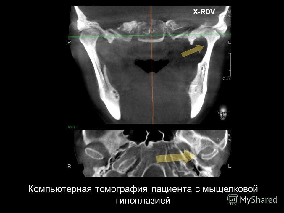 X-RDV Компьютерная томография пациента с мыщелковой гипоплазией