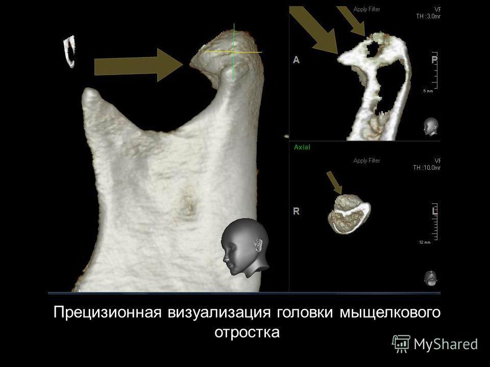 Прецизионная визуализация головки мыщелкового отростка
