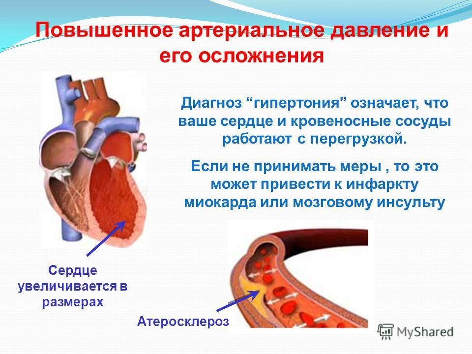 Повышенное артериальное давление и его осложнения Диагноз гипертония означает, что ваше сердце и кровеносные сосуды работают с перегрузкой. Если не принимать меры, то это может привести к инфаркту миокарда или мозговому инсульту Сердце увеличивается