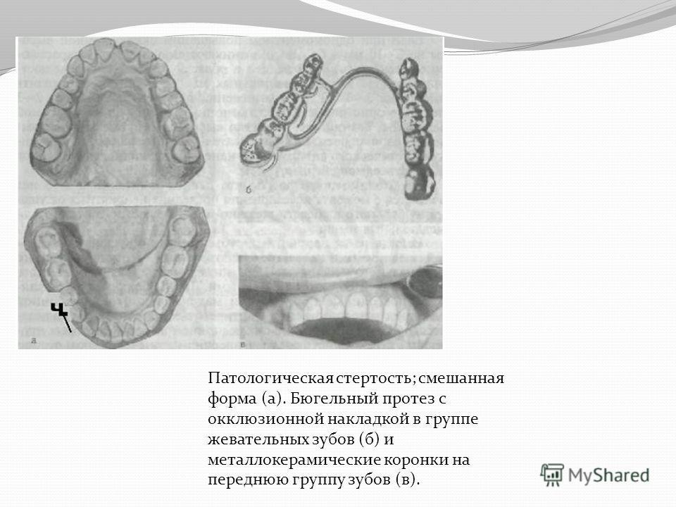 Патологическая стертость; смешанная форма (а). Бюгельный протез с окклюзионной накладкой в группе жевательных зубов (б) и металлокерамические коронки на переднюю группу зубов (в).