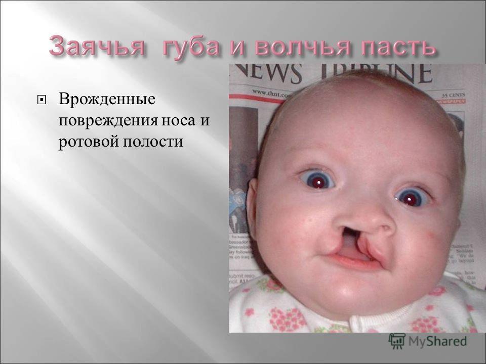 Врожденные повреждения носа и ротовой полости