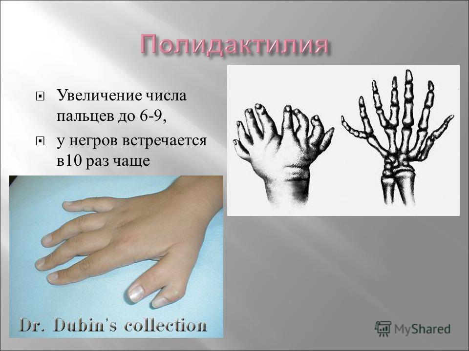Увеличение числа пальцев до 6-9, у негров встречается в10 раз чаще