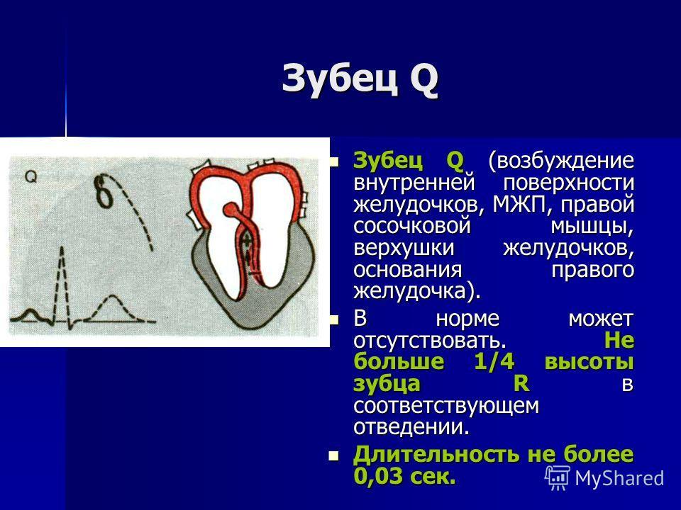 Зубец Q Зубец Q (возбуждение внутренней поверхности желудочков, МЖП, правой сосочковой мышцы, верхушки желудочков, основания правого желудочка). Зубец Q (возбуждение внутренней поверхности желудочков, МЖП, правой сосочковой мышцы, верхушки желудочков
