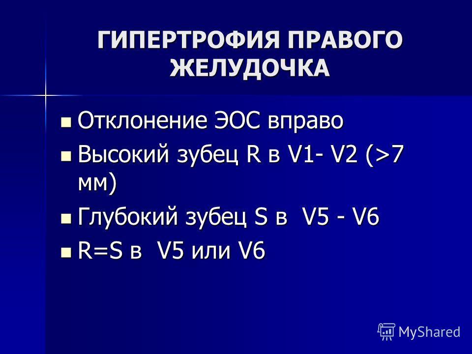 ГИПЕРТРОФИЯ ПРАВОГО ЖЕЛУДОЧКА Отклонение ЭОС вправо Отклонение ЭОС вправо Высокий зубец R в V1- V2 (>7 мм) Высокий зубец R в V1- V2 (>7 мм) Глубокий зубец S в V5 - V6 Глубокий зубец S в V5 - V6 R=S в V5 или V6 R=S в V5 или V6