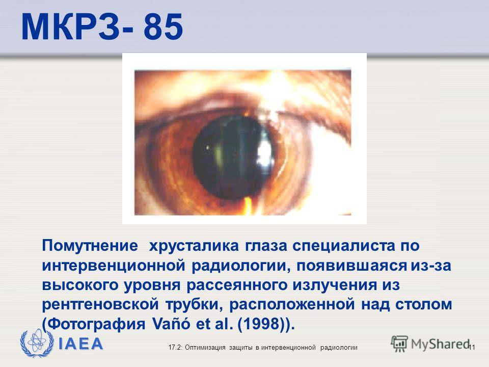 IAEA 17.2: Оптимизация защиты в интервенционной радиологии11 Помутнение хрусталика глаза специалиста по интервенционной радиологии, появившаяся из-за высокого уровня рассеянного излучения из рентгеновской трубки, расположенной над столом (Фотография