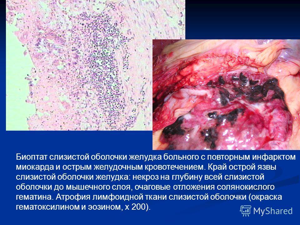 Биоптат слизистой оболочки желудка больного с повторным инфарктом миокарда и острым желудочным кровотечением. Край острой язвы слизистой оболочки желудка: некроз на глубину всей слизистой оболочки до мышечного слоя, очаговые отложения солянокислого г