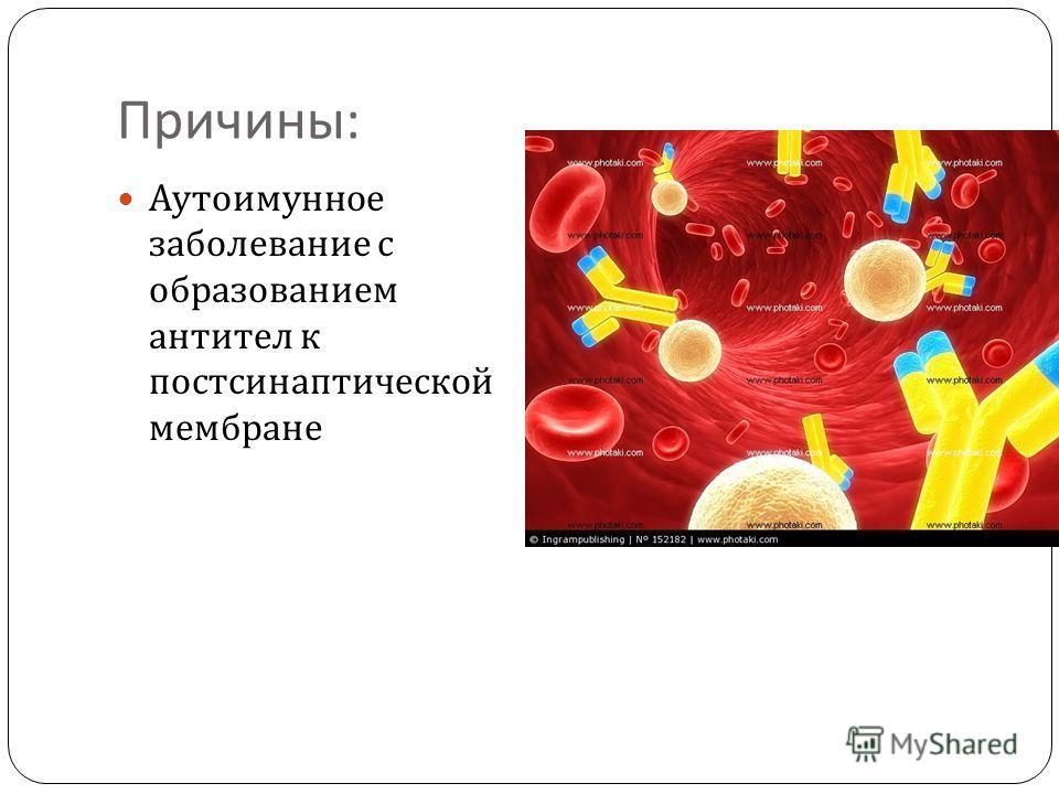 Причины : Аутоимунное заболевание с образованием антител к постсинаптической мембране