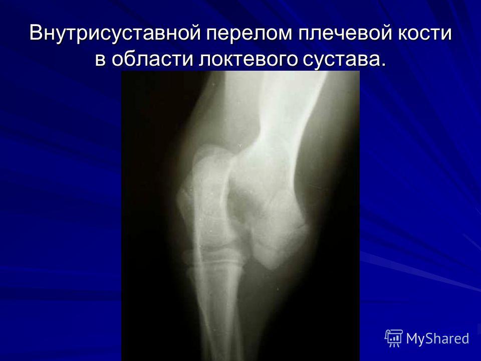 Внутрисуставной перелом плечевой кости в области локтевого сустава.
