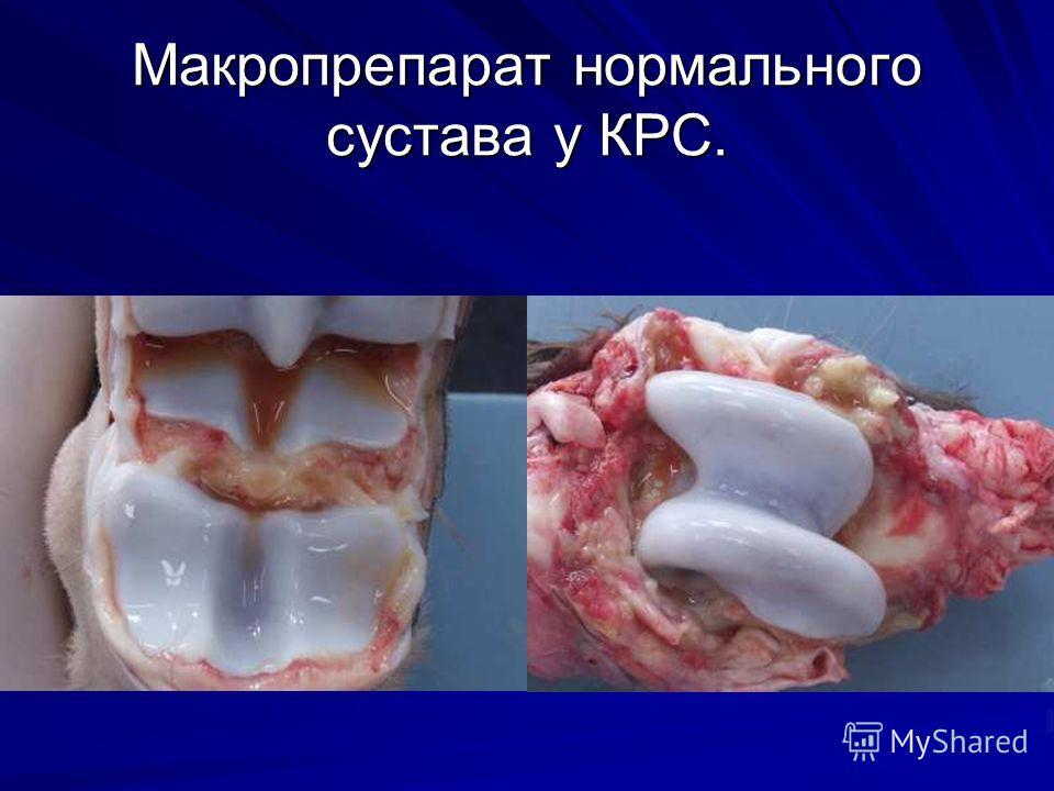 Макропрепарат нормального сустава у КРС.