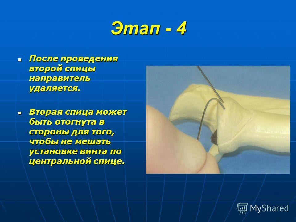 Этап - 4 После проведения второй спицы направитель удаляется. После проведения второй спицы направитель удаляется. Вторая спица может быть отогнута в стороны для того, чтобы не мешать установке винта по центральной спице. Вторая спица может быть отог