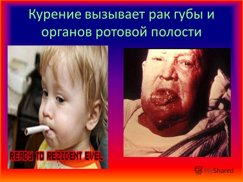 Курение вызывает рак губы и органов ротовой полости