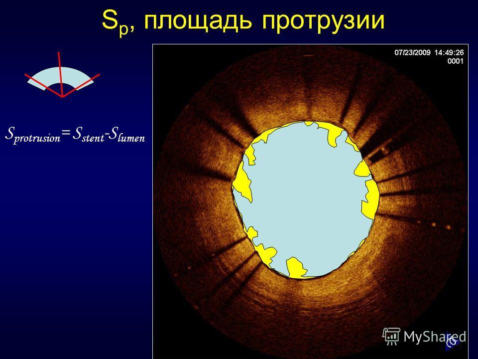 S p, площадь протрузии S protrusion = S stent -S lumen