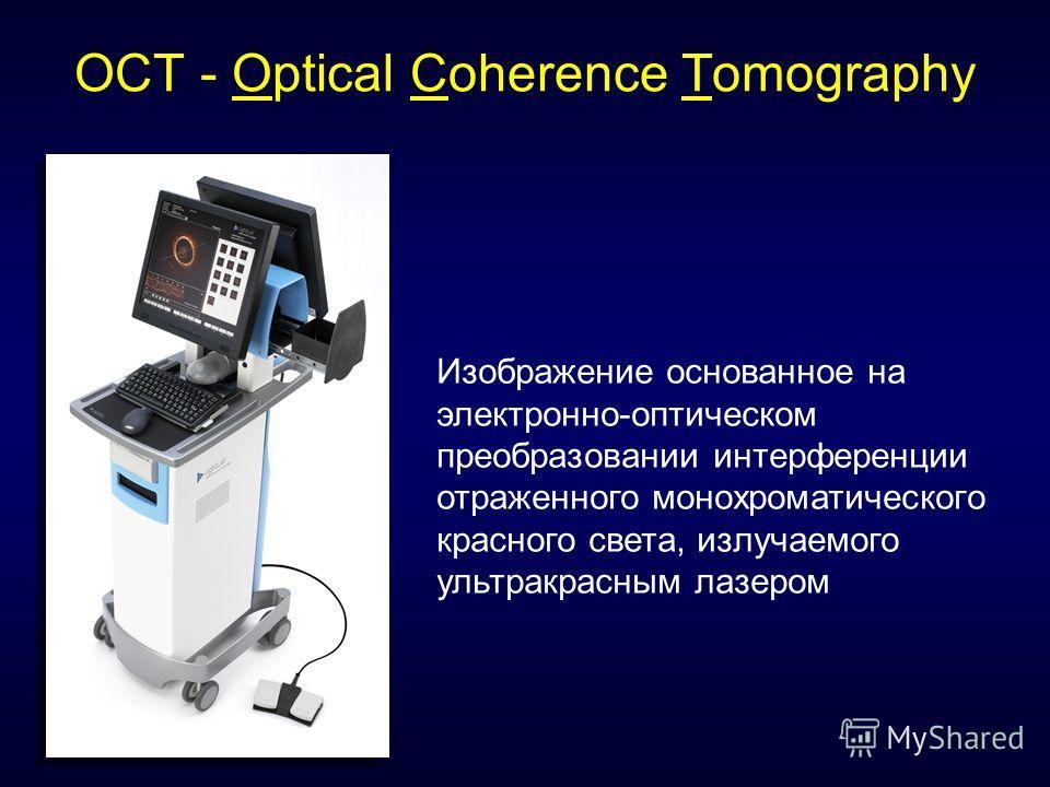 OCT - Optical Coherence Tomography Изображение основанное на электронно-оптическом преобразовании интерференции отраженного монохроматического красного света, излучаемого ультракрасным лазером