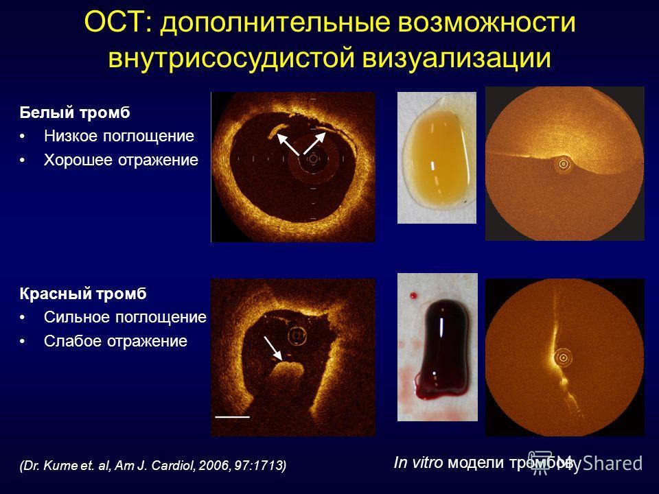 ОСТ: дополнительные возможности внутрисосудистой визуализации (Dr. Kume et. al, Am J. Cardiol, 2006, 97:1713) In vitro модели тромбов Белый тромб Низкое поглощение Хорошее отражение Красный тромб Сильное поглощение Слабое отражение