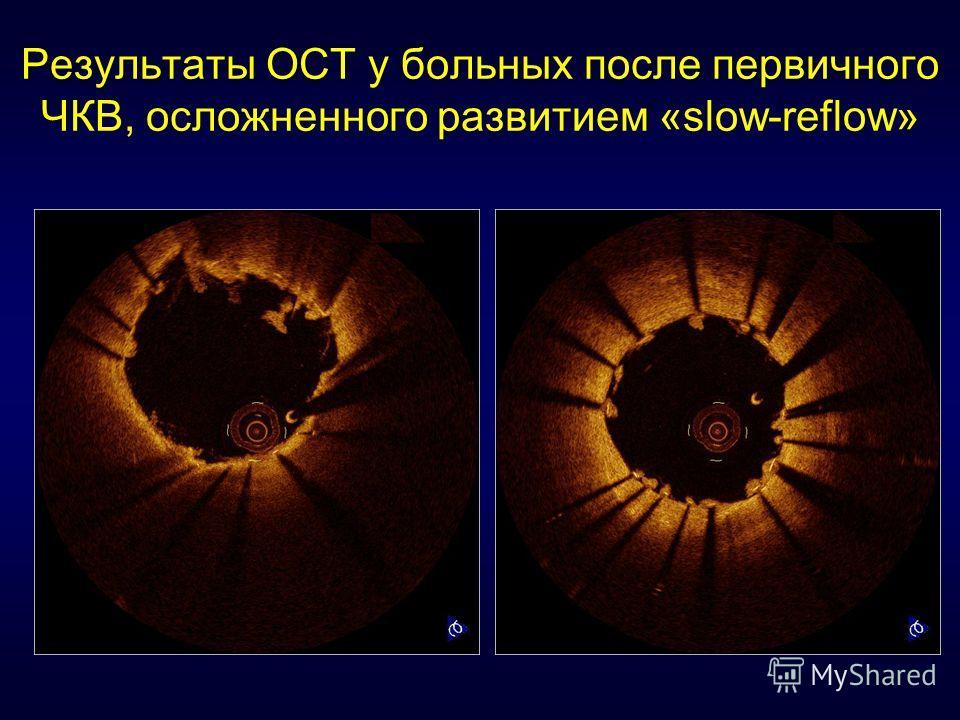 Результаты ОСТ у больных после первичного ЧКВ, осложненного развитием «slow-reflow»