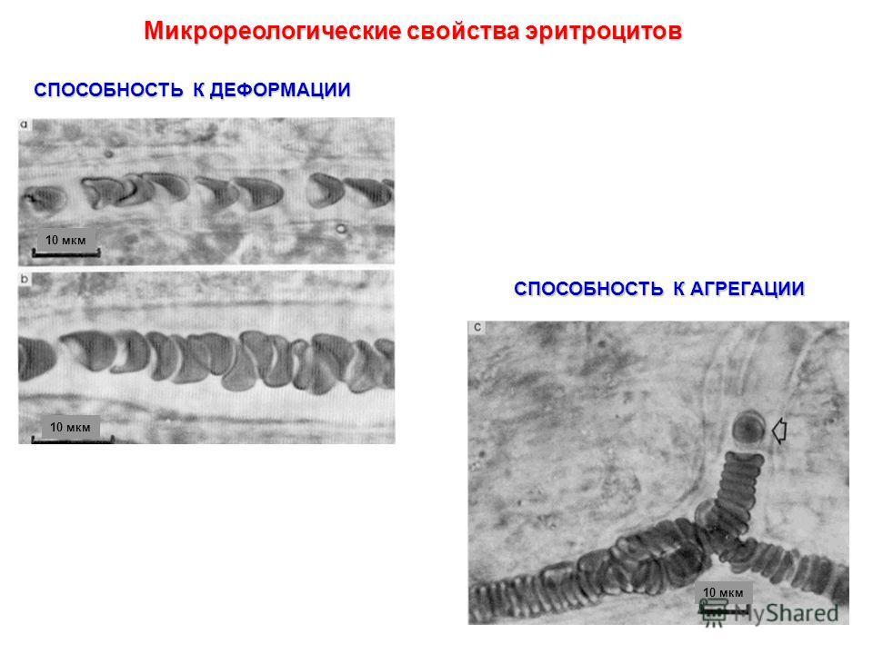 Микрореологические свойства эритроцитов СПОСОБНОСТЬ К ДЕФОРМАЦИИ СПОСОБНОСТЬ К АГРЕГАЦИИ 10 мкм