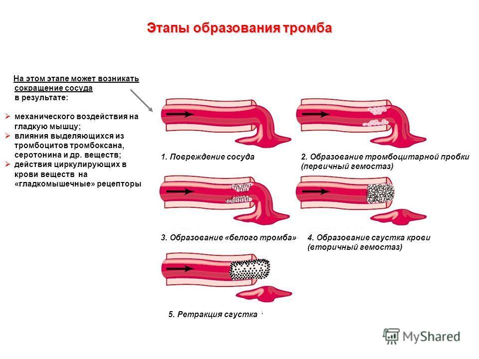 Этапы образования тромба 1. Повреждение сосуда2. Образование тромбоцитарной пробки (первичный гемостаз) 3. Образование «белого тромба»4. Образование сгустка крови (вторичный гемостаз) 5. Ретракция сгустка На этом этапе может возникать сокращение сосу