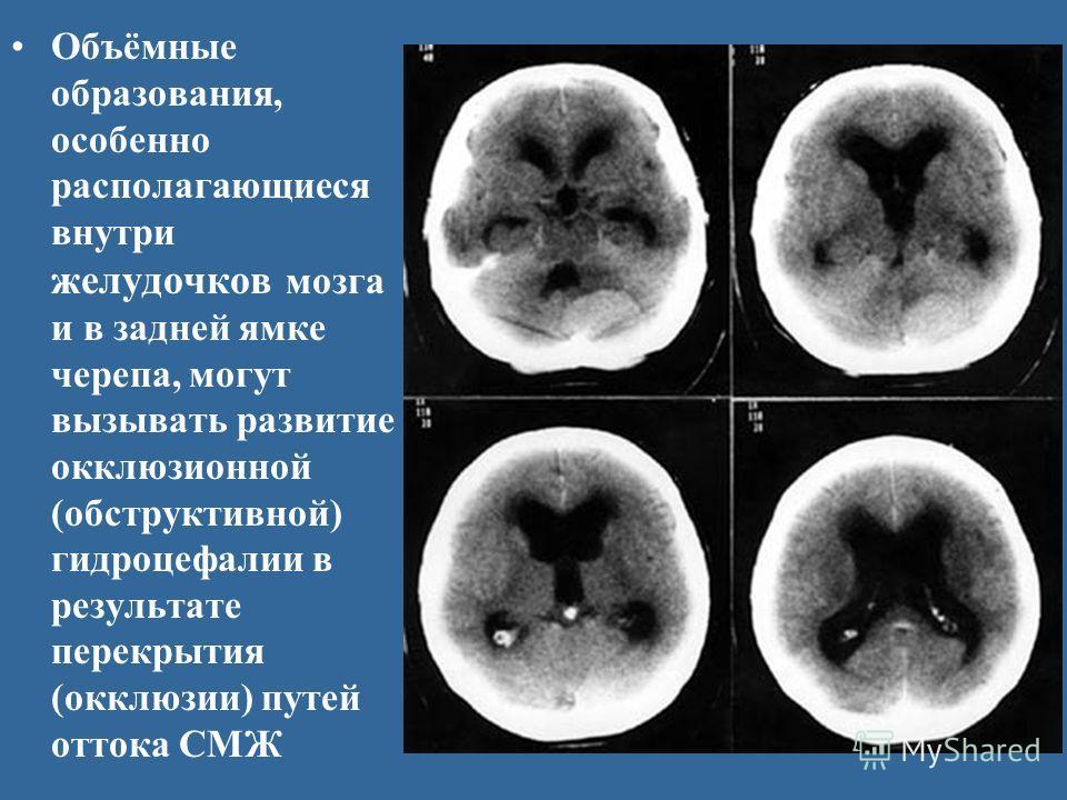 Объёмные образования, особенно располагающиеся внутри желудочков мозга и в задней ямке черепа, могут вызывать развитие окклюзионной (обструктивной) гидроцефалии в результате перекрытия (окклюзии) путей оттока СМЖ