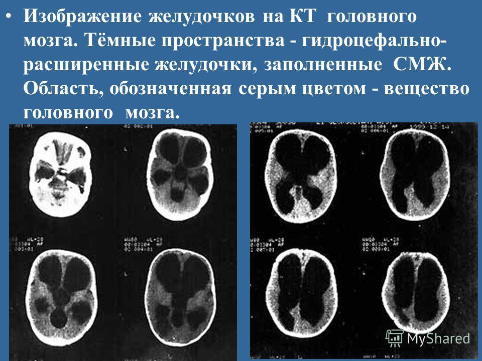 Изображение желудочков на КТ головного мозга. Тёмные пространства - гидроцефально- расширенные желудочки, заполненные СМЖ. Область, обозначенная серым цветом - вещество головного мозга.
