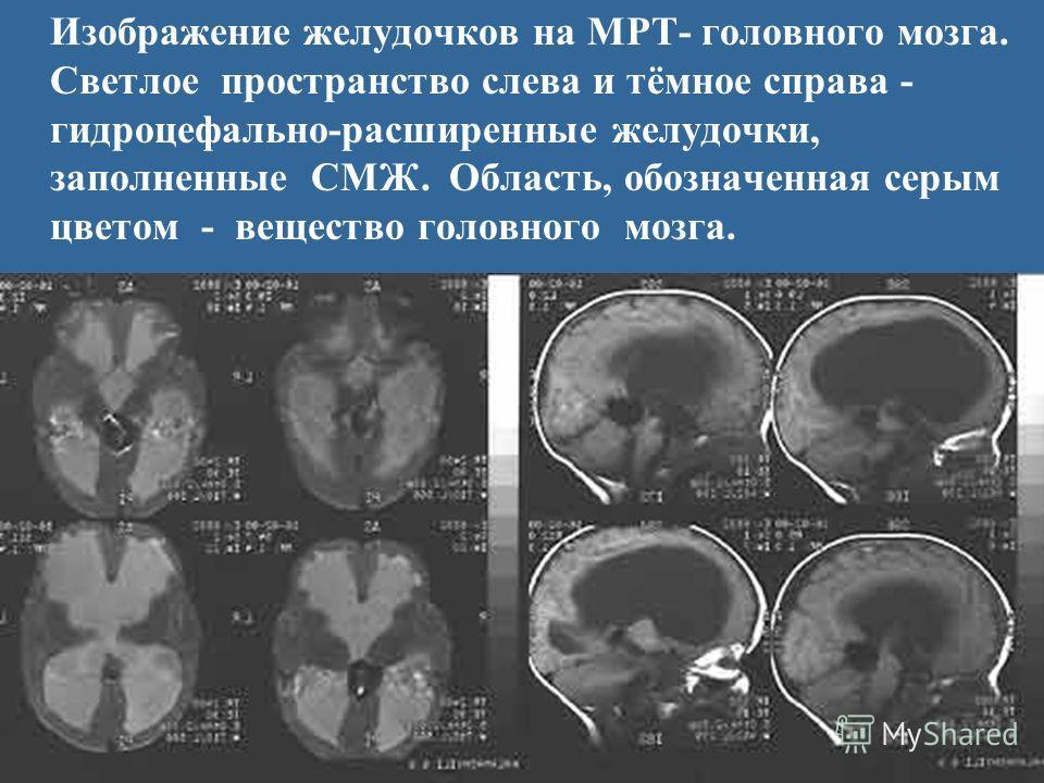 Изображение желудочков на МРТ- головного мозга. Светлое пространство слева и тёмное справа - гидроцефально-расширенные желудочки, заполненные СМЖ. Область, обозначенная серым цветом - вещество головного мозга.