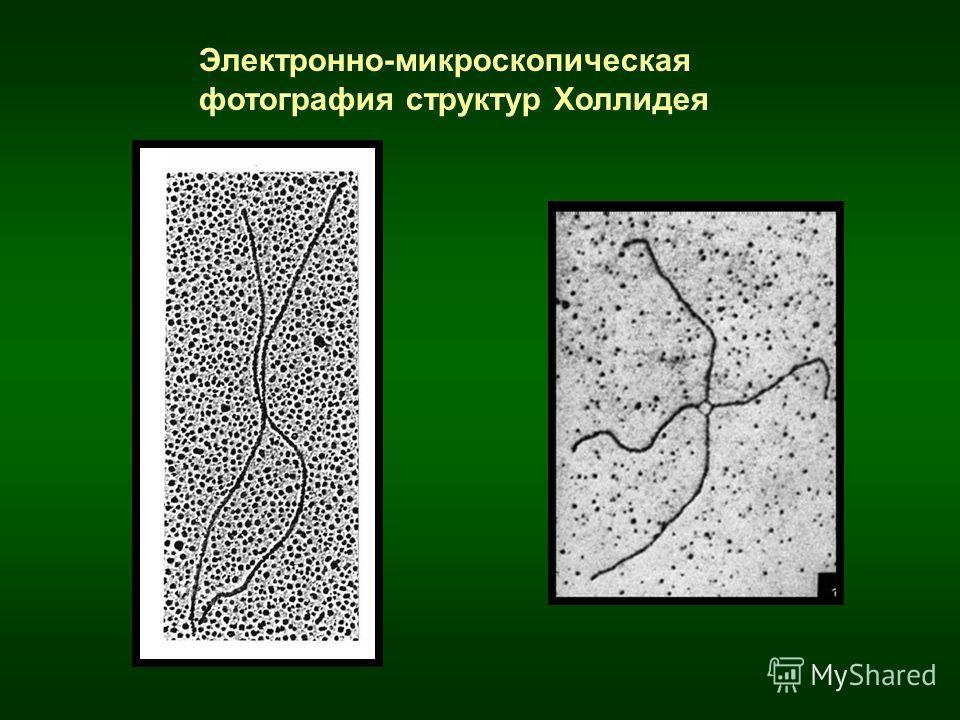 Электронно-микроскопическая фотография структур Холлидея