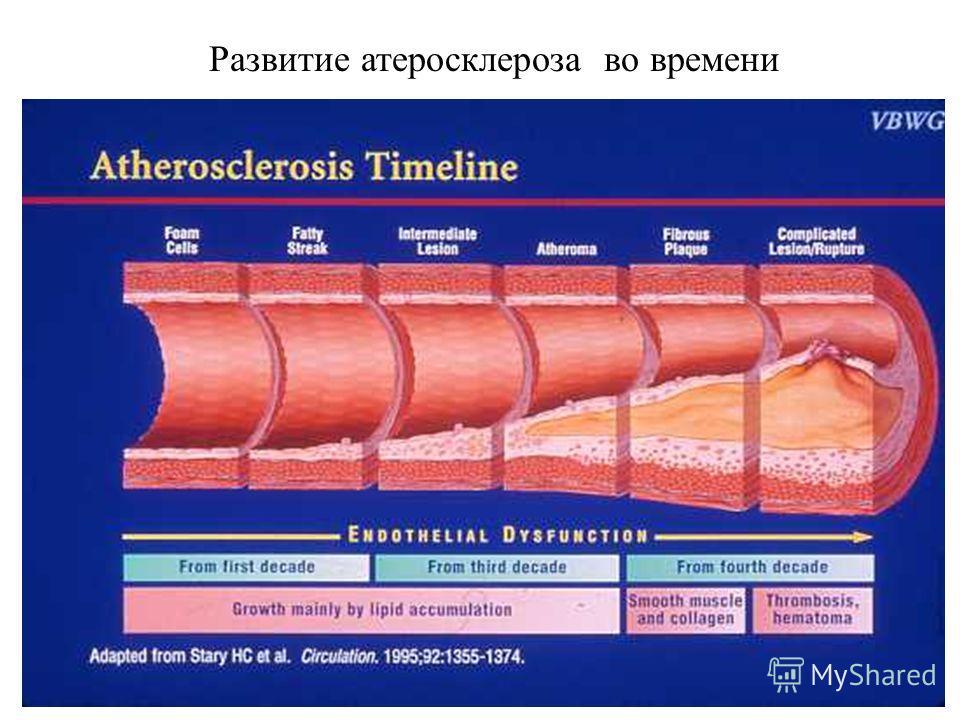 6 Развитие атеросклероза во времени