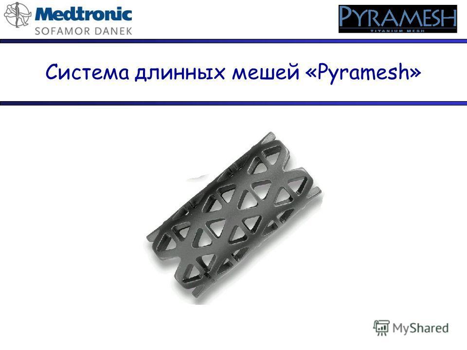 Система длинных мешей «Pyramesh»