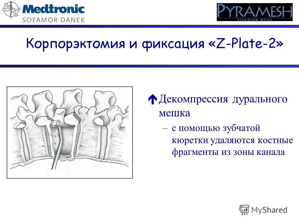 éДекомпрессия дурального мешка –с помощью зубчатой кюретки удаляются костные фрагменты из зоны канала Корпорэктомия и фиксация «Z-Plate-2»