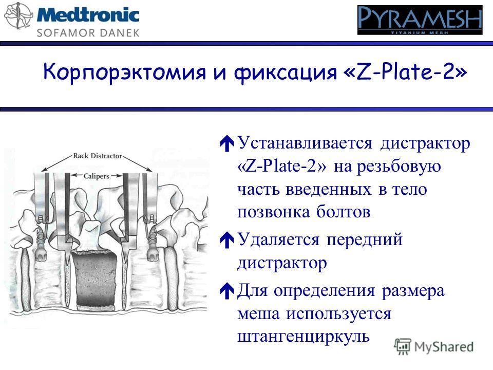 éУстанавливается дистрактор «Z-Plate-2» на резьбовую часть введенных в тело позвонка болтов éУдаляется передний дистрактор éДля определения размера меша используется штангенциркуль Корпорэктомия и фиксация «Z-Plate-2»