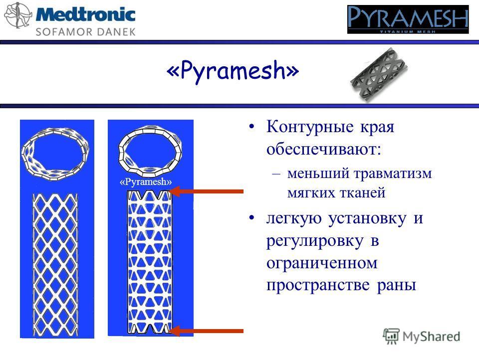 «Pyramesh» Контурные края обеспечивают: –меньший травматизм мягких тканей легкую установку и регулировку в ограниченном пространстве раны