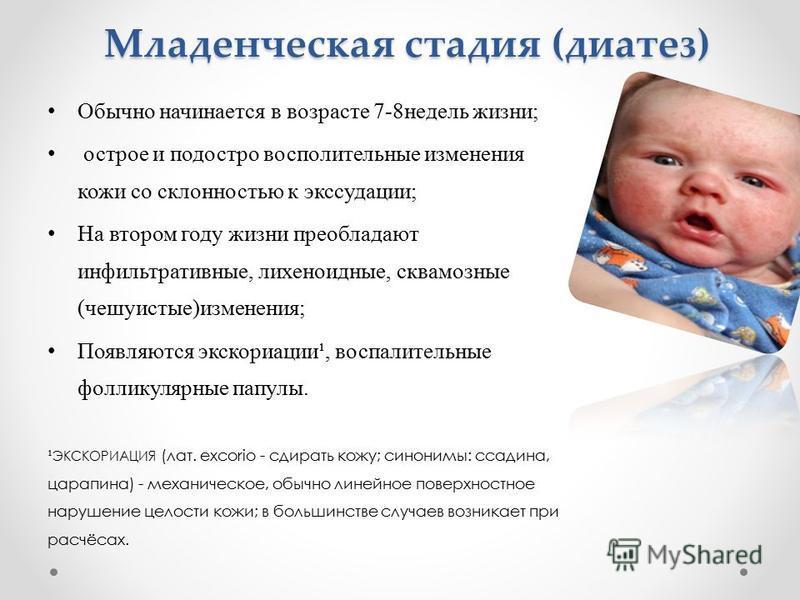 55Диатез у детей как лечить