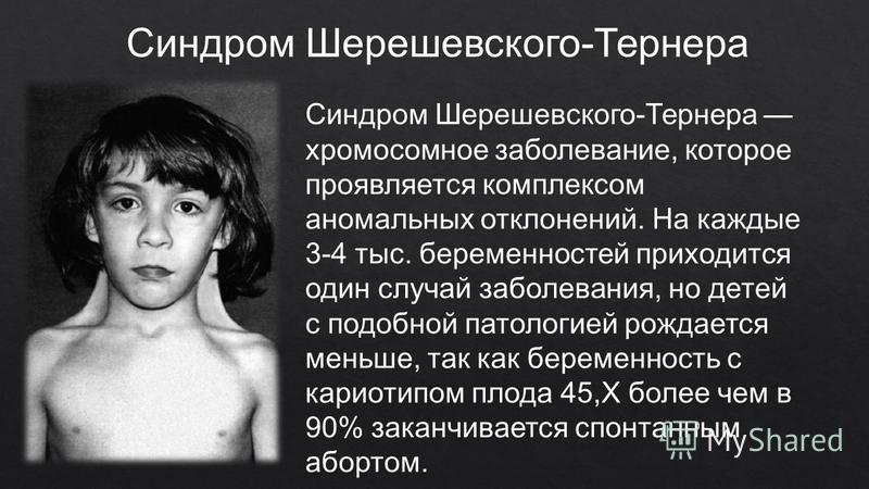 Синдром шерешевского тернера доклад 2935