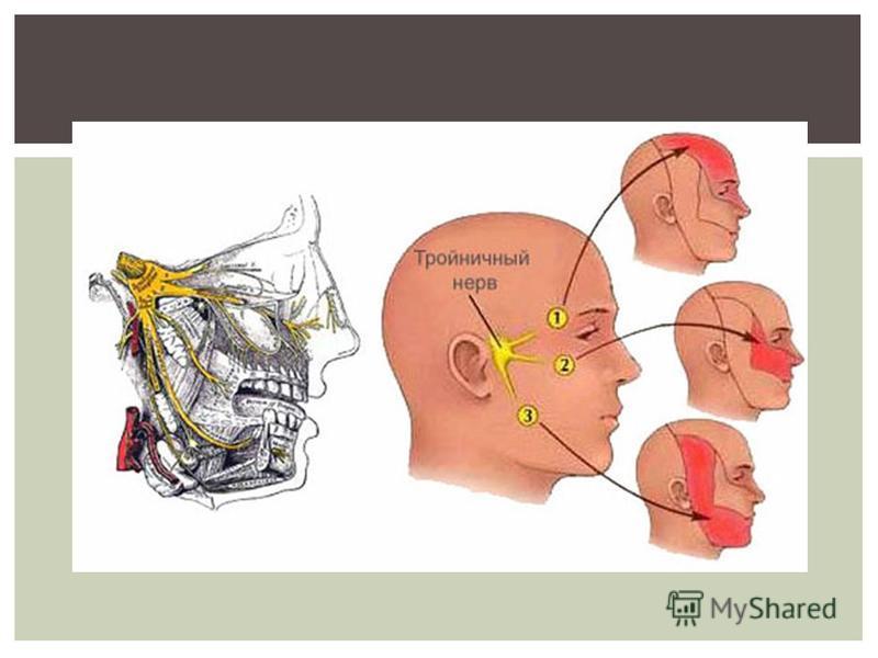 Невралгия Причины симптомы и лечение МЖ