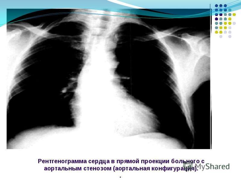 медикаментозное лечение аортальной конфигурации