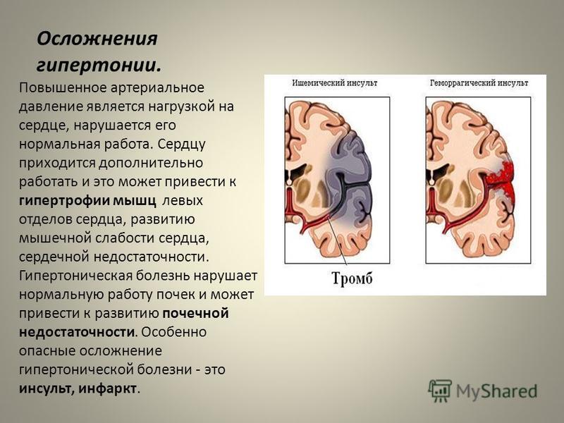 Осложнения гипертонии. Повышенное артериальное давление является нагрузкой на сердце, нарушается его нормальная работа. Сердцу приходится дополнительно работать и это может привести к гипертрофии мышц левых отделов сердца, развитию мышечной слабости