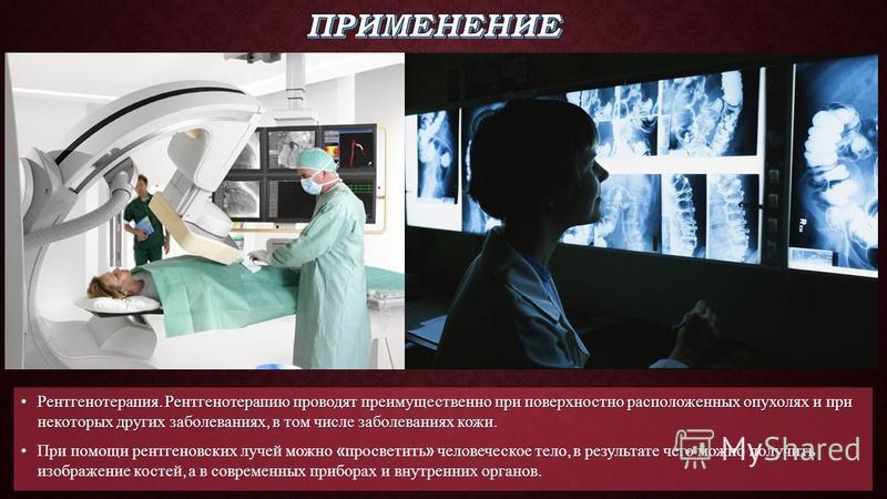Рентгенотерапия. Рентгенотерапию проводят преимущественно при поверхностно расположенных опухолях и при некоторых других заболеваниях, в том числе заболеваниях кожи.Рентгенотерапия. Рентгенотерапию проводят преимущественно при поверхностно расположен