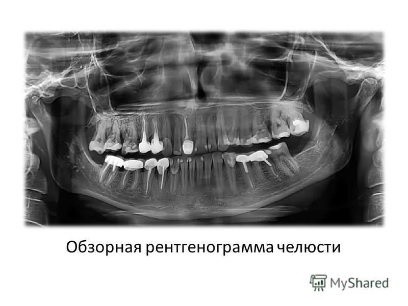 Обзорная рентгенограмма челюсти