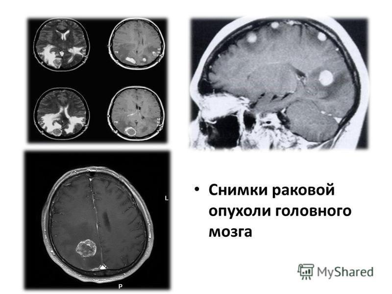 Снимки раковой опухоли головного мозга