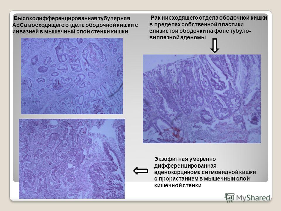 Экзофитная умеренно дифференцированная аденокарцинома сигмовидной кишки с прорастанием в мышечный слой кишечной стенки Высокодифференцированная тубулярная AdCa восходящего отдела ободочной кишки с инвазией в мышечный слой стенки кишки Рак нисходящего