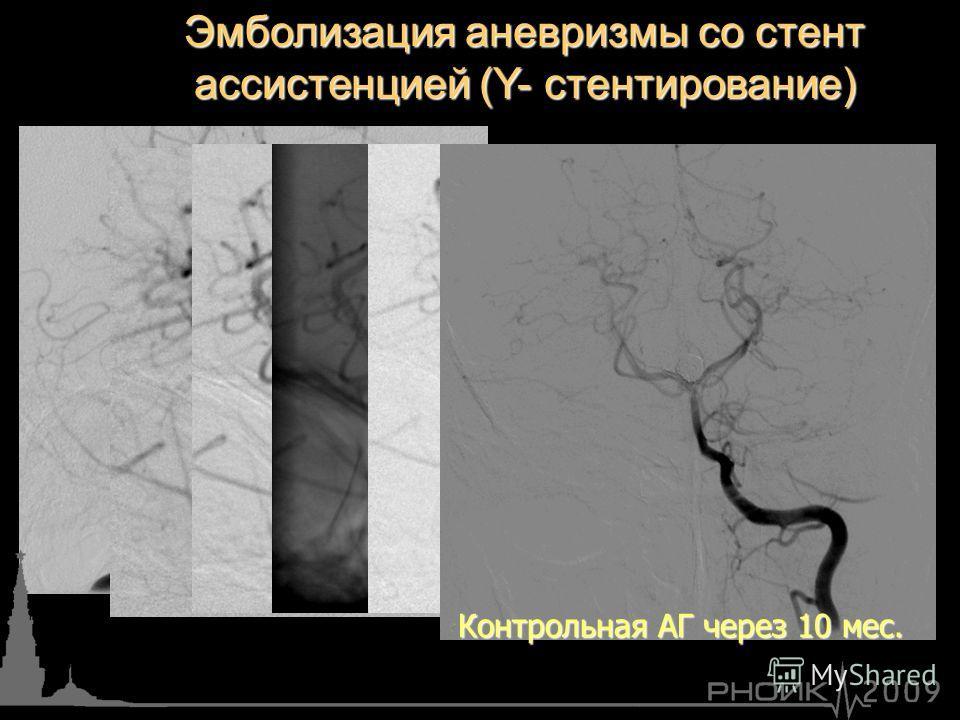 Эмболизация аневризмы со стент ассистенцией (Y- стентирование) Контрольная АГ через 10 мес.