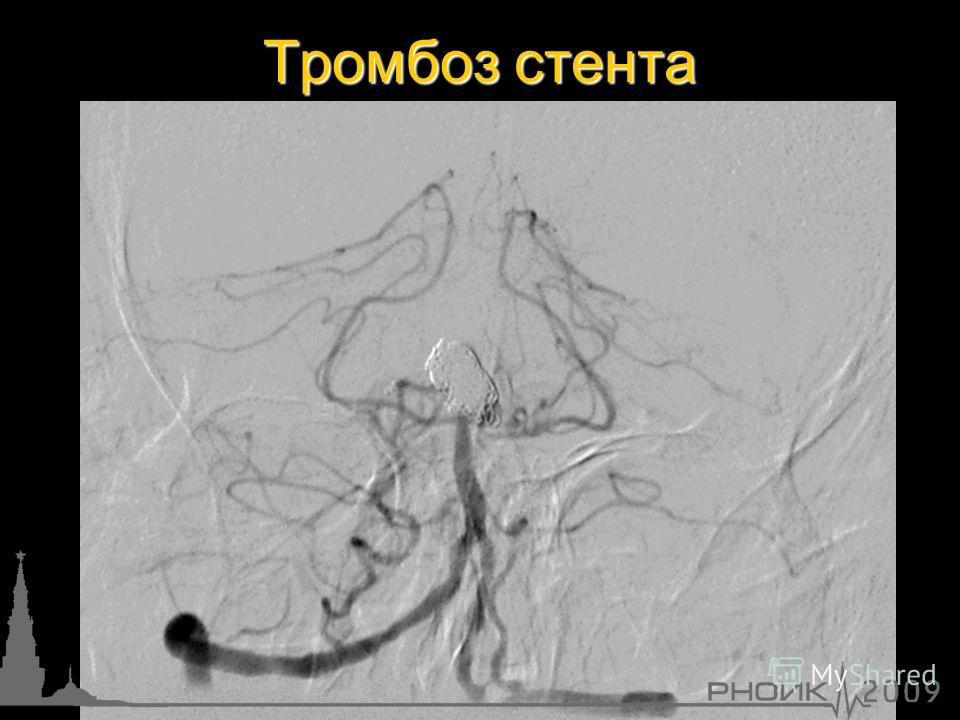 Тромбоз стента