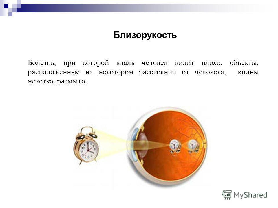 Болезнь, при которой вдаль человек видит плохо, объекты, расположенные на некотором расстоянии от человека, видны нечетко, размыто. Близорукость