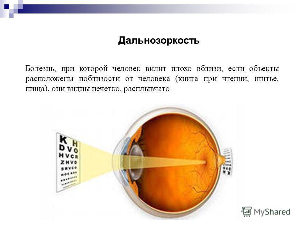Болезнь, при которой человек видит плохо вблизи, если объекты расположены поблизости от человека (книга при чтении, шитье, пища), они видны нечетко, расплывчато Дальнозоркость