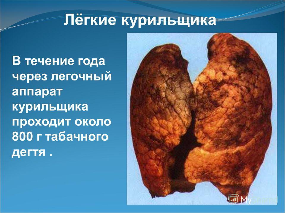 Болезни развивающие у курильщиков Бронхиальная астма Хронический бронхит Рак губы, языка, гортани, трахеи Ишемическая болезнь сердца Гастрит Язвенная болезнь Атеросклероз